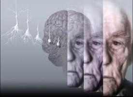 Come distinguere l'Alzheimer dalla depressione nell'anziano?