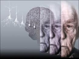 morzo-di-alzheimer-depressione