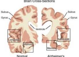 Depressione e Demenza senile: due malattie connesse tra loro