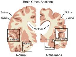 demenza  e depressione