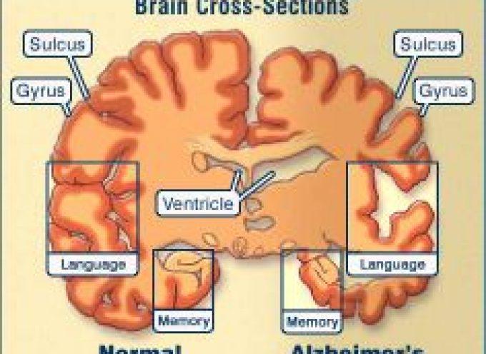 Delirio nella Demenza Senile e nel Morbo di Alzheimer