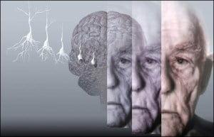 Psicofarmaci e Anziani