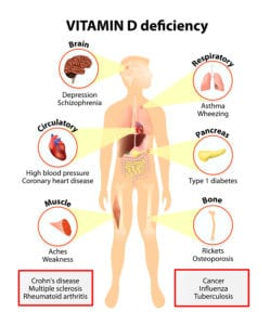 Carenza di Vitamina D e Depressione